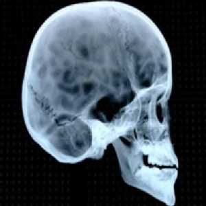 Human Skull Bumps http://www.nicertutor.com/sketches/video/NOVA-DarwinNeverKnew/